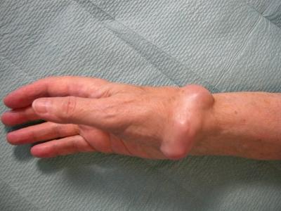Wie lange erfolgt die Krankschreibung bei einer Schleimbeutelentzündung?