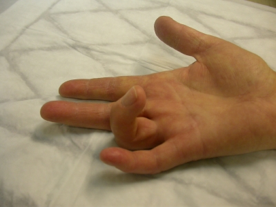 Schmerzen im Handrücken