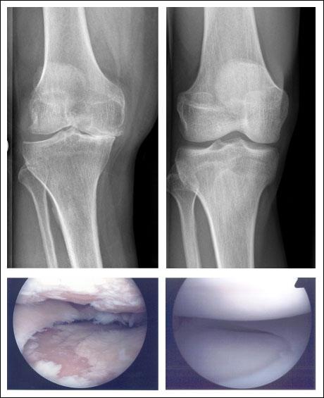 Kniearthrose - Kniegelenksarthrose - die Abnutzung im Kniegelenk